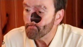 Смотреть онлайн Человек, живущий без носа