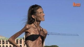 Смотреть онлайн Живой труп: анорексия
