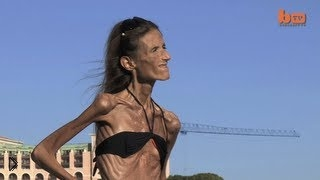 —мотреть онлайн Живой труп: анорексия