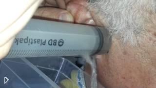 Смотреть онлайн Как удалить серную пробку из уха