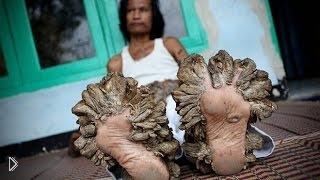 Смотреть онлайн Жуткое заболевание: история человека-дерева