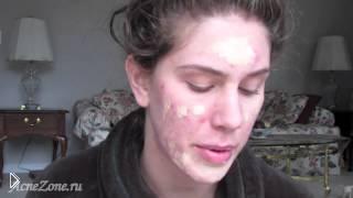 Смотреть онлайн Макияж: как убрать красные прыщи на лице косметикой