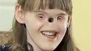Смотреть онлайн Девочка, родившись без глаз и носа радуется жизни