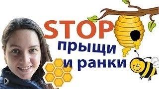 Смотреть онлайн Лечим трещины в уголках рта медом