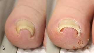 Смотреть онлайн Страшное устройство от вросшего ногтя