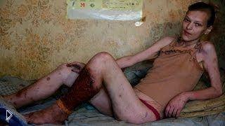 Смотреть онлайн Шокирующий ролик о наркоманах - гниющие живые