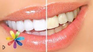 Смотреть онлайн Как натуральными ингридиентами отбелить зубы